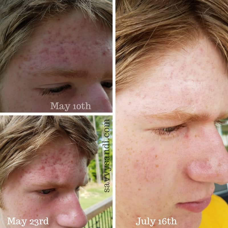 Cystic acne healed over two months time. Blemishes and scarring both greatly improved.